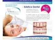 Implantes y estetica dental