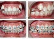 Ortodoncia y ofertas dentales  con planes de financiamiento