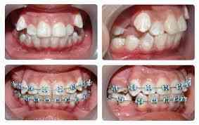Ortodoncistas en Cañar Fulldental´s  Especialistas, Tratamiento Integral