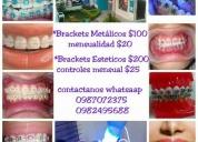 Brackets dientes odontólogo ortodoncia. contactarse.