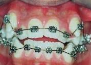 Ortodoncia y estÉtica dental, consultar!.