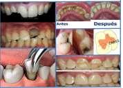 Se brinda atención odontológica gratis en la universidad san gregorio de portoviejo!