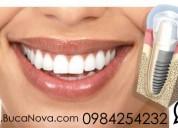 Implantes dentales quito  clinica bucanova