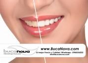 Bucanova - odontologÍa avanzada clinica norte de quito