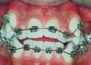 FundaciÓn ortodoncia para todos fulldentals