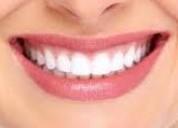 Implantes y coronas dentales fulldental´s especialistas monte sianÍ