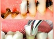 Extracciones dentales gratis