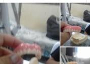 Clases de protesis
