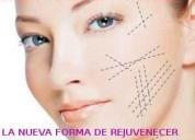 Hilos tensores faciales la nueva forma de rejuvene