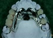 20$ prótesis dentales quito reparaciones flexible