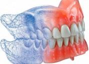 Protesis dental extracciones bracket blanqueamient