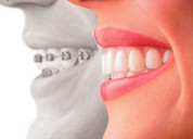 Brackets stoma dental studio