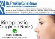 Rinoplastia en cuenca:: dr. franklin calle