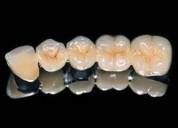 PrÓtesis dentales 24h