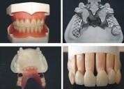 MecÁnico dental quito protesis dentales