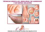 Tratamiento de hongos en manos y pies