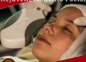 Rejuvenecimiento facial con láser opt