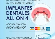 Implantes dentales all on four