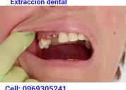 Extracción dental $10